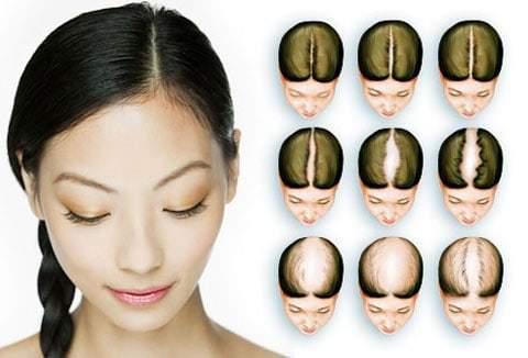 присаждане на коса при жени
