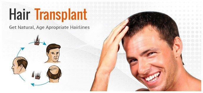 резултата от присаждане на коса