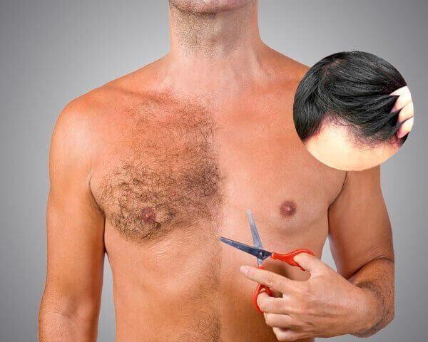 Присаждане на коса от тялото