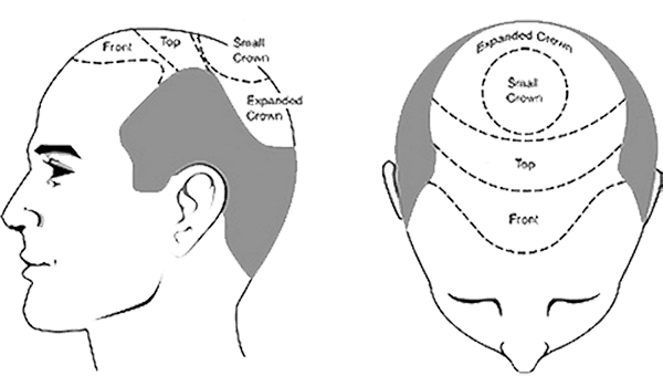 Присаждане на коса - постоянно решение ли е при косопад