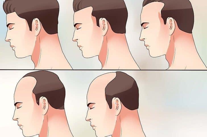 след присаждане на коса