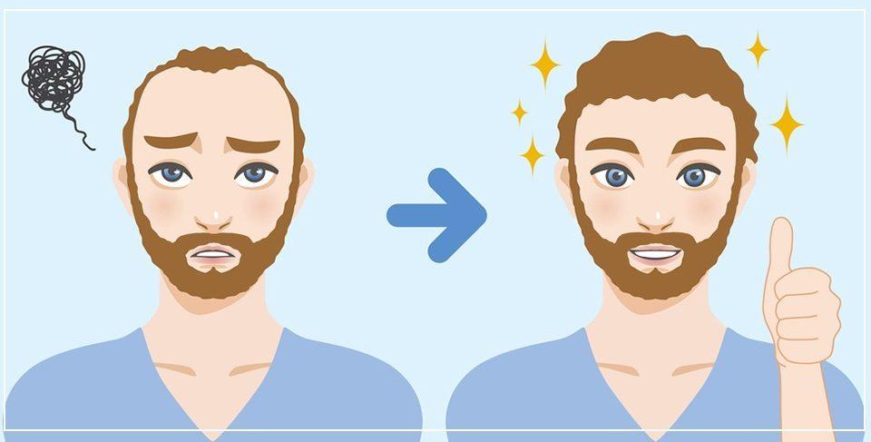 Андрогенна алопеция и как присаждане на коса
